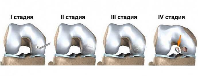 остеохондроз коленного сустава виды