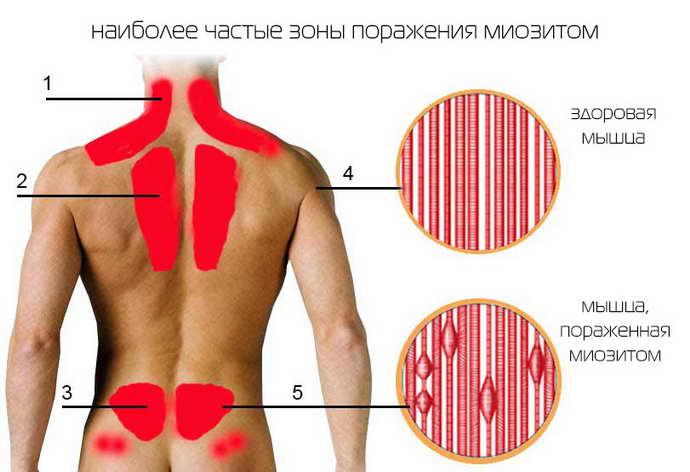 остеохондроз копчика и его причины