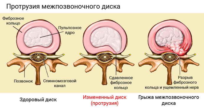 почему может возникать остеохондроз между лопаток