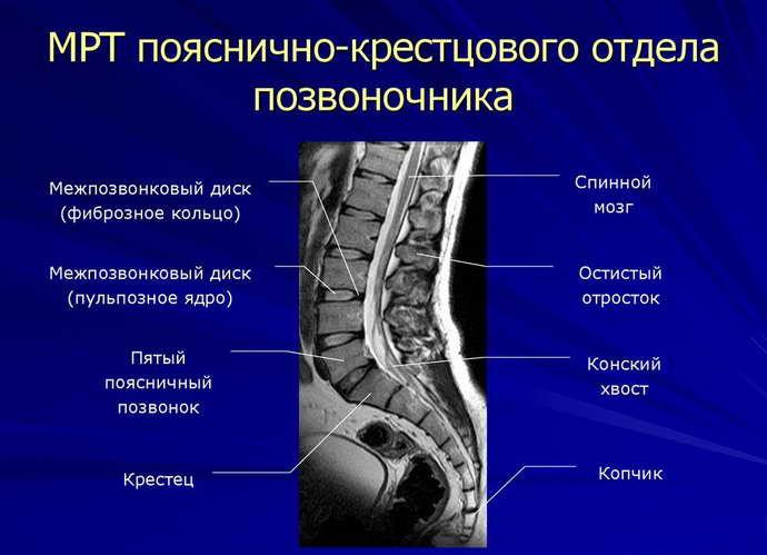 Причины переноса боли из спины в ногу
