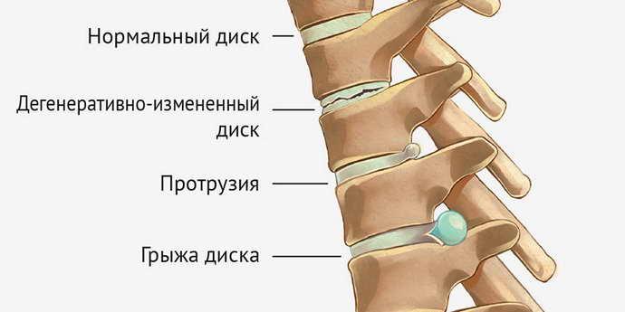 почему может болеть нога при остеохондрозе