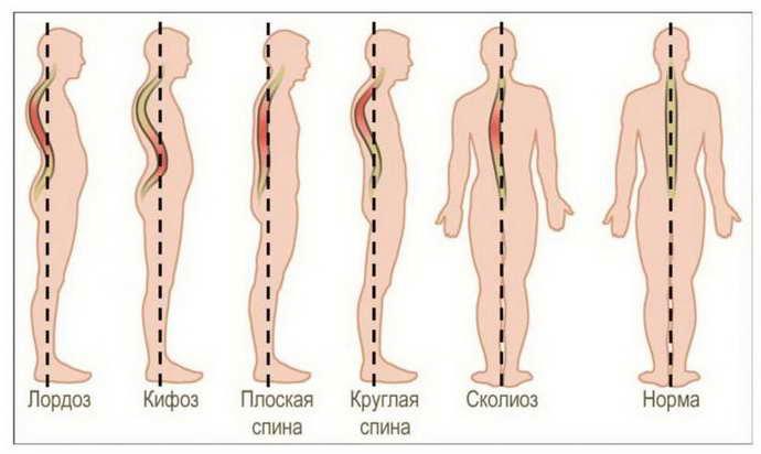 остеохондроз с корешковым синдромом группы риска