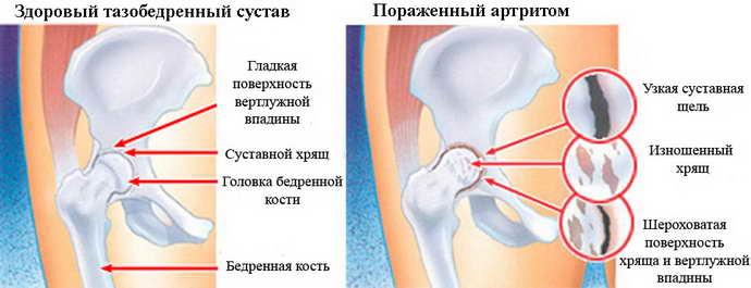 что такое остеохондроз тазобедренного сустава