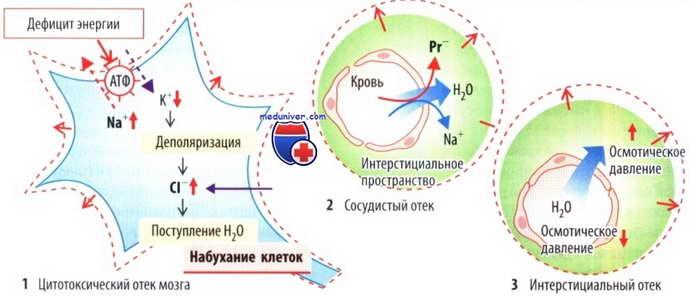 Особенности развития отечности мозга после инсульта