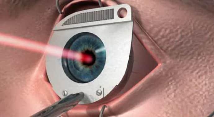 Лазерная коррекция при параличе аккомодации