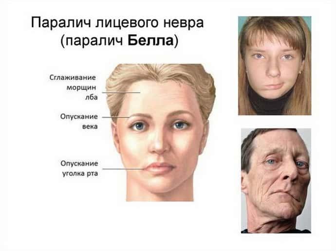 Паралич Белла, патология, затрагивающая область лицевого нерва
