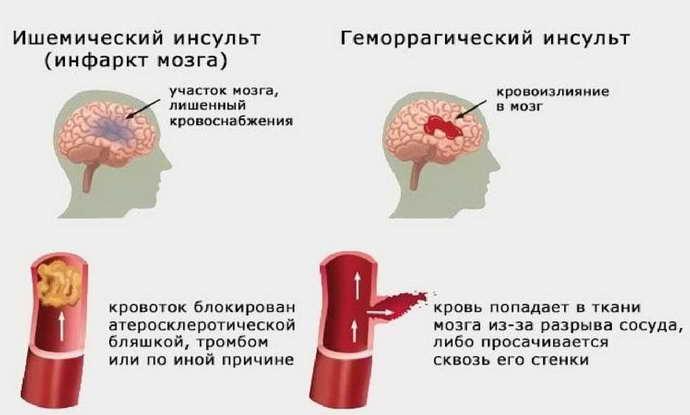парализация левой стороны при инсульте симптомы