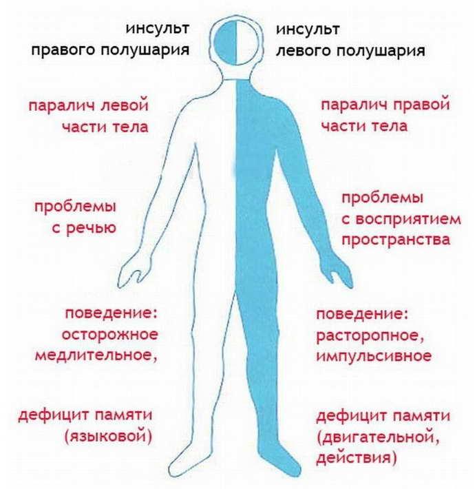 парализация левой стороны при инсульте