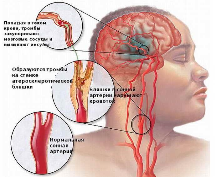 Почему может возникнуть паралич левой стороны после приступа