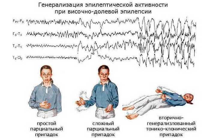 Классификация парциальной эпилепсии