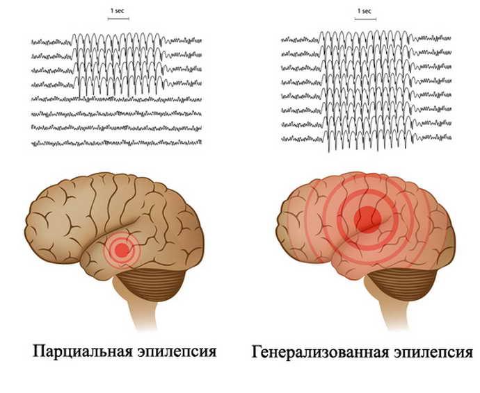 3 вида эпилепсии