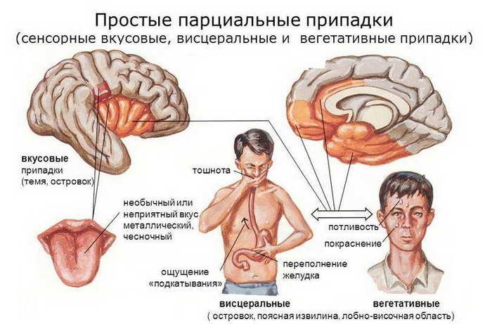 Как определить эпилептический припадок