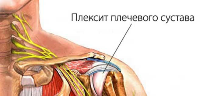 плексит плечевого сустава симптомы лечение
