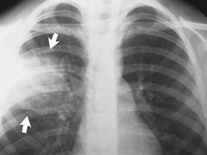 пневмония после инсульта симптомы