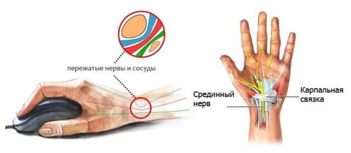 Если немеют кончики пальцев на руках, что делать