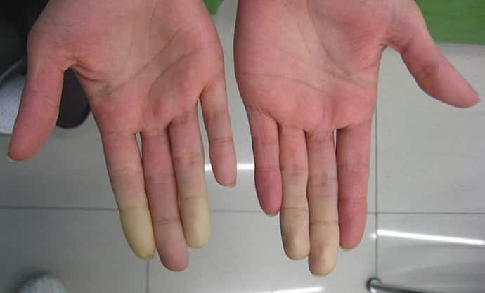 Немеют руки: причины и лечение