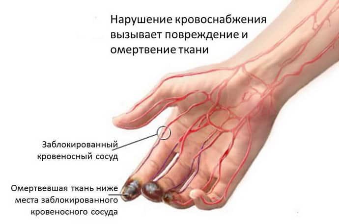 От чего возникает тромбоз