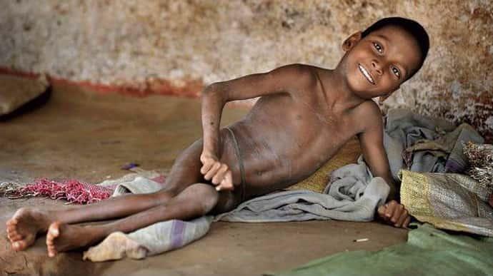 Лечение при полиомиелите