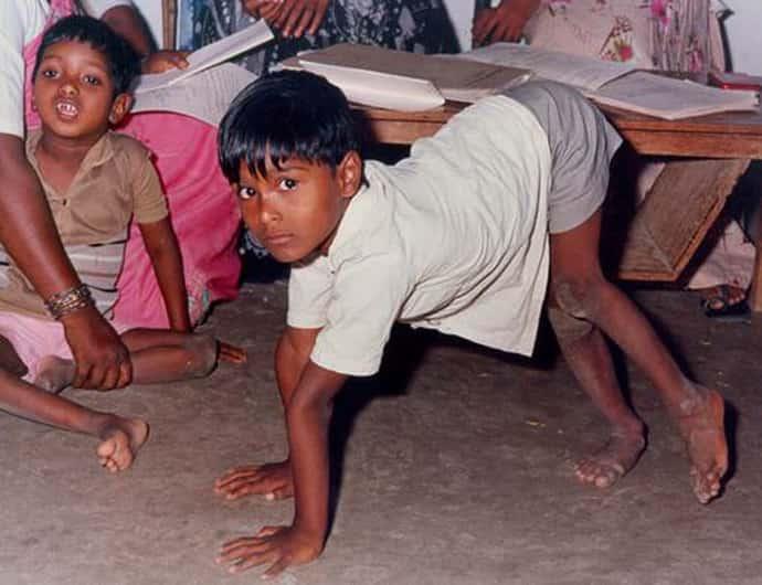 Осложнения при полиомиелите