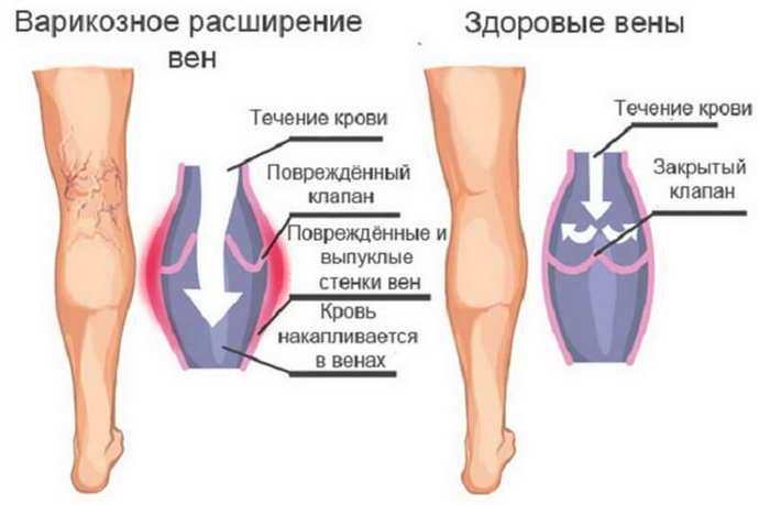после инсульта отекают ноги чем лечить