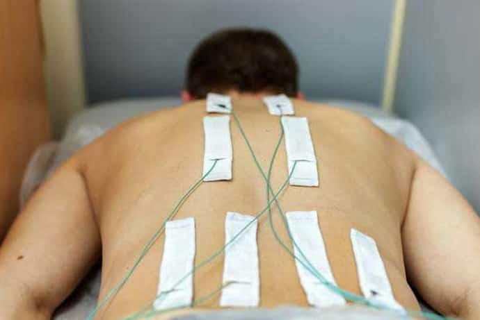Как лечится постгерпетическая невралгия