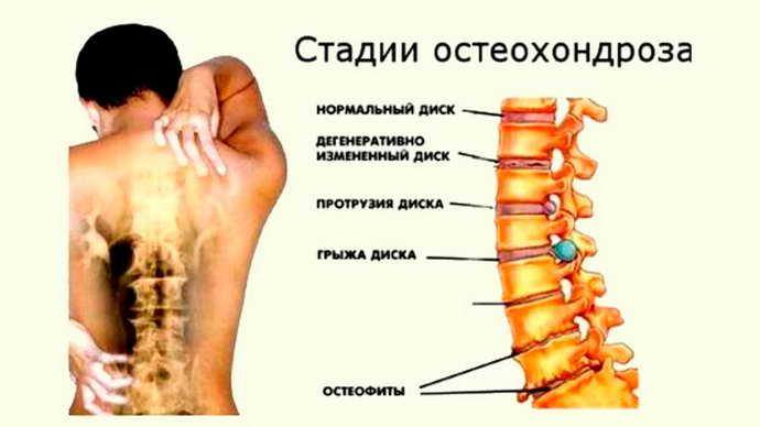 как использовать пояс для поясницы при остеохондрозе