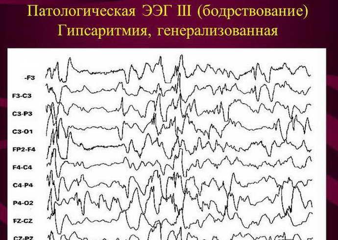 Главные разновидности эпилепсии у грудничков