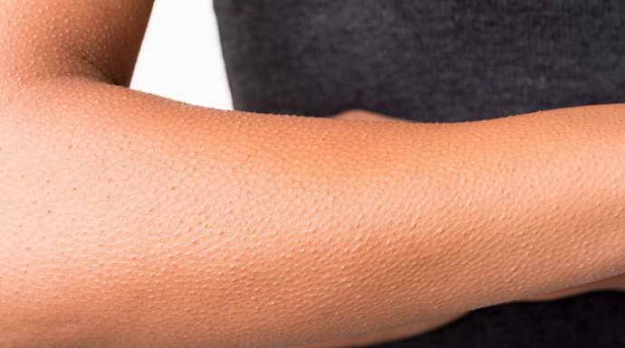 микроинсульт у женщин перенесенного на ногах симптоматика
