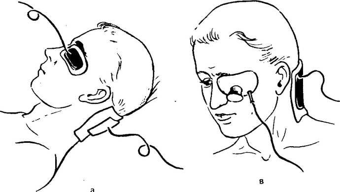 лечение птоза верхнего века