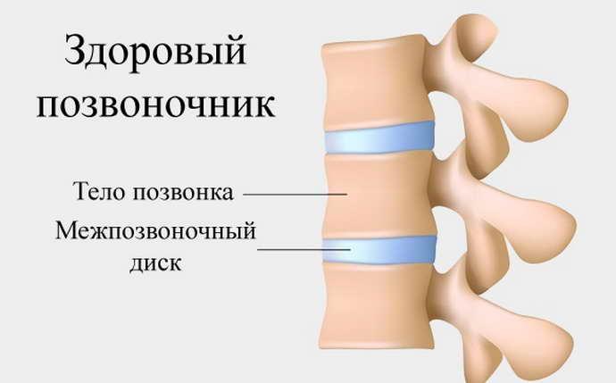 распространенный остеохондроз