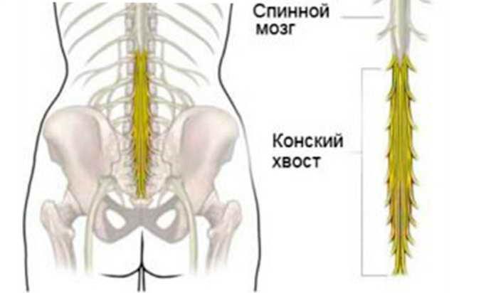 распространенный остеохондроз лечение