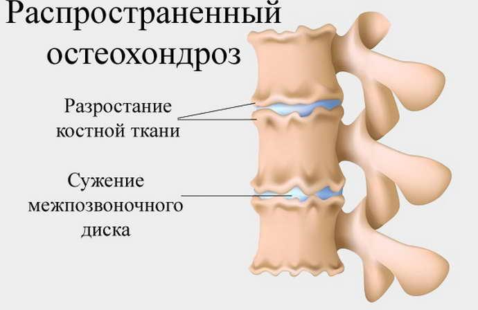 распространенный остеохондроз причины