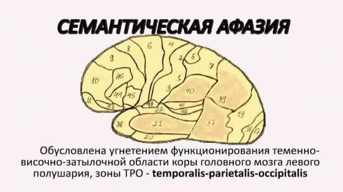 Что такое сементическая афазия