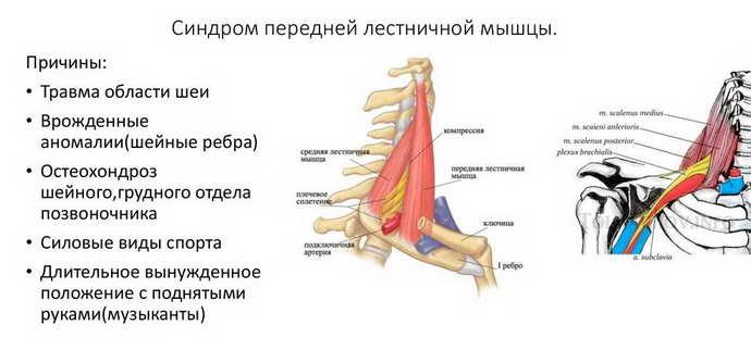 синдром лестничной мышцы и механизм его образования