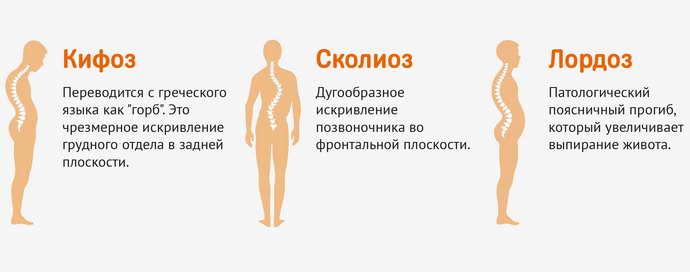 остеохондроз шеи причины
