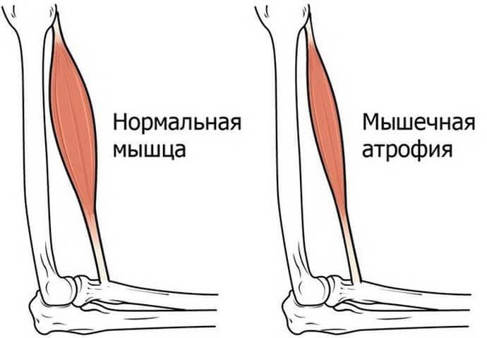 Как развивается спинальная мышечная атрофия