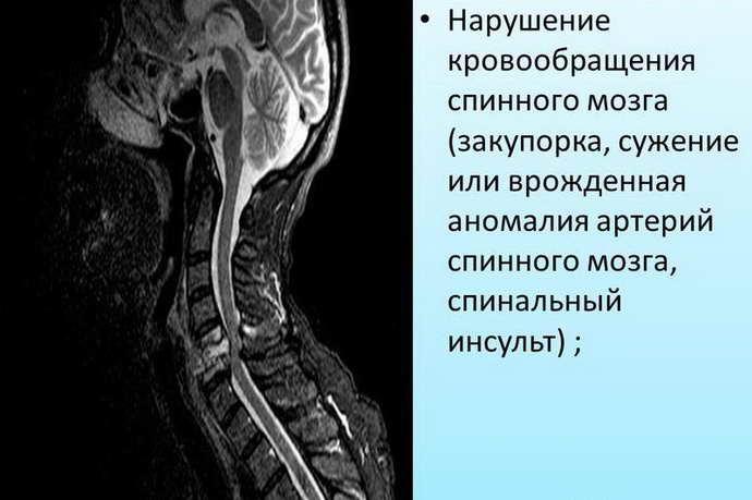 спинальный инсульт причины