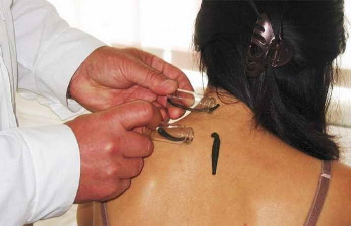 Основные принципы лечения стадий остеохондроза