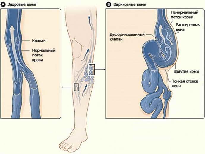 Варикоз нижних конечностей и судороги икроножных мышц