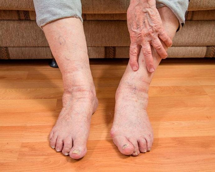 судороги ног и рук у пожилых людей причины лечение
