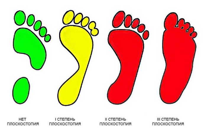 сводит стопы из-за плоскостопия