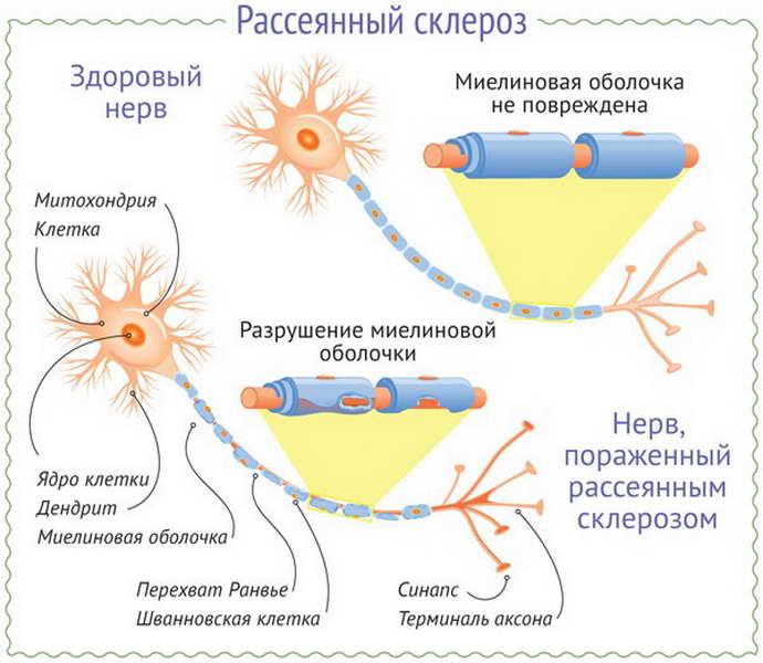рассеянный склероз при эпилепсии
