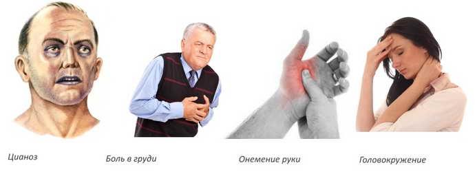 какие признаки у тахикардии при остеохондрозе