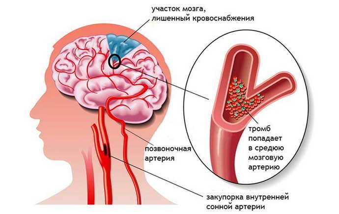 какие осложнения от  тахикардии при остеохондрозе