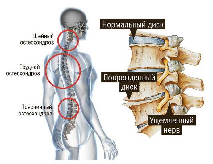 тошнота при остеохондрозе и ее причины