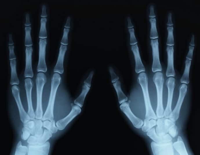Рентген при тоннельном синдроме