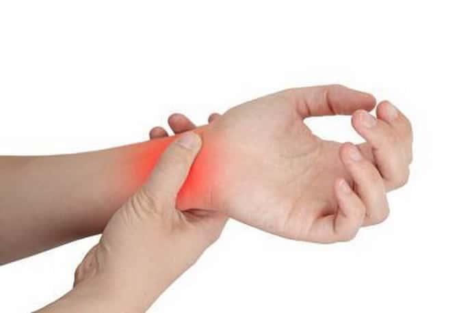 Туннельный синдром: характеристика, симптом и причины появления патологии.