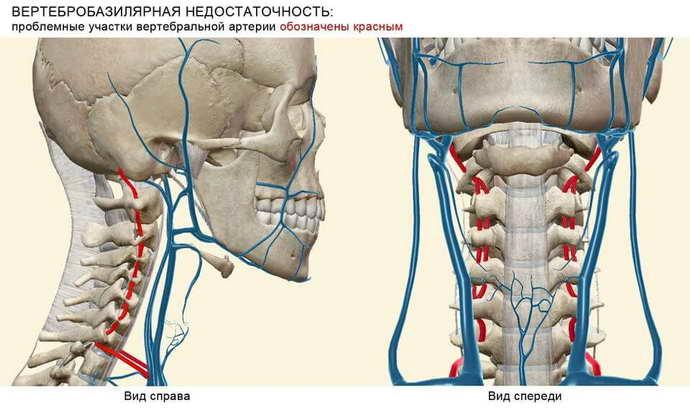 что такое вертебро базилярная недостаточность на фоне шейного остеохондроза