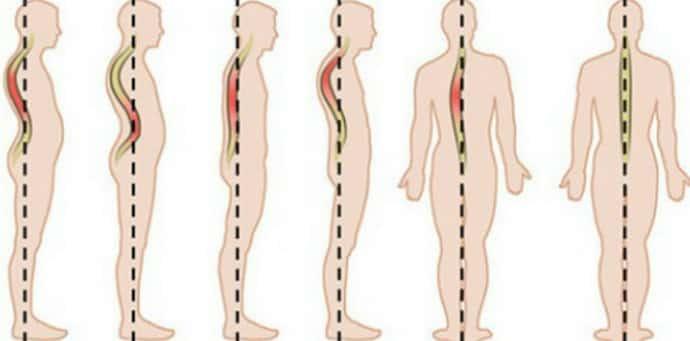 Как определяется вертеброгенная торакалгия
