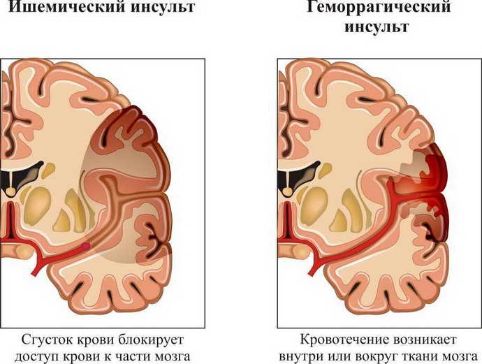 Какие заболевания мозга могут привести к нарушению вестибулярной функции